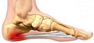 Image of the plantar fascia of the foot.
