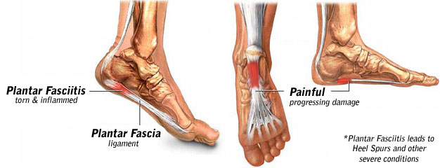 Tears to the plantar fascia